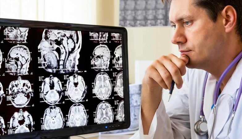 Tips to find reliable neurology doctors